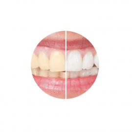 Kit blanchiment dentaire à la menthe - avant-après - Keeth